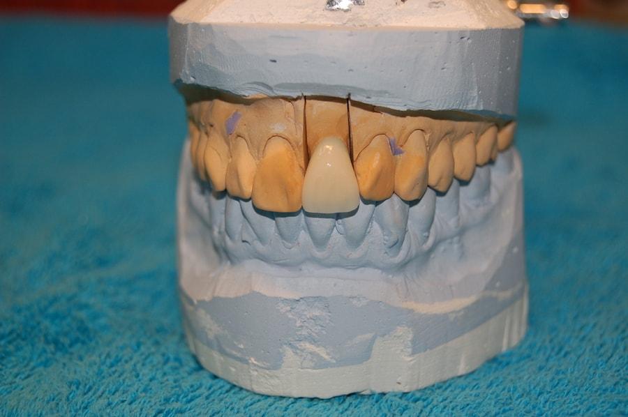 Korony zębowe pracownia