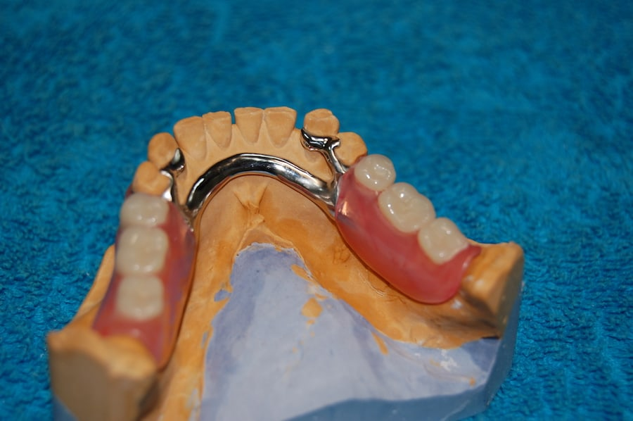 Proteza szkieletowa licowana materialem elastycznym
