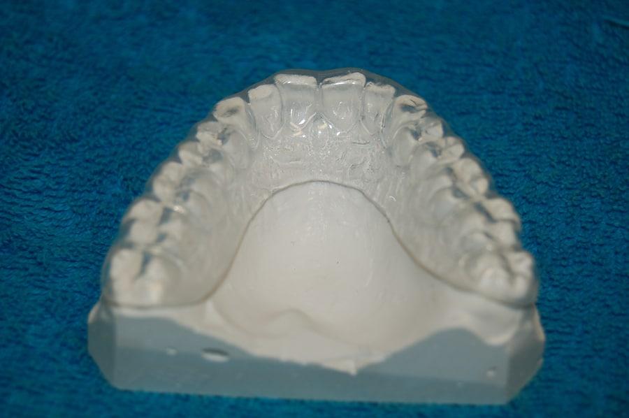 szyny zębowe wybielające warszawa
