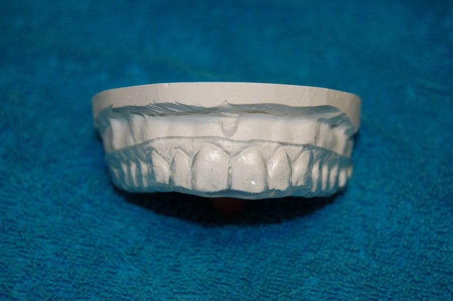 wybielające szyny zębowe warszawa
