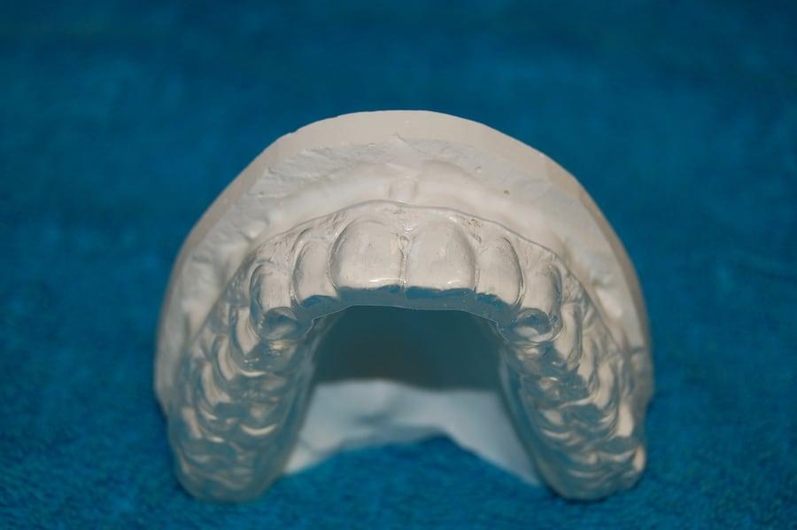wybielające szyny zębowe